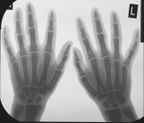 Adolescent: early resorbtion of terminal phalanges