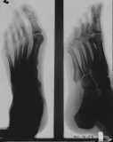 diffuse atrophy of phalanges and distal metatarsals: contraction deformation of toes