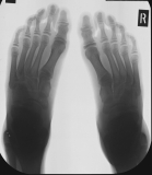adolescent: early contraction deformation of toes