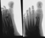 Absorbtion and fusion of most phalanges: diffuse atrophy of distal metatarsi