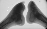 clubbing of both feet: destruction of most phalanges: fusion of tarsals: concentric diaphyseal remodelling of metatarsals