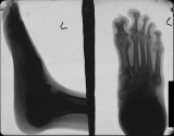 concentric diaphyseal remodelling and destruction of phalanges: collapse of longitudinal arch: tarsal bars