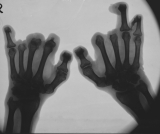 claw hands: destruction of most phalanges: fusion of carpals: fusion of metatarso-phalangeal joints of thumbs