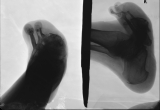 boat shaped foot: destruction of phalanges: concentric diaphyseal remodelling metatarsals: contraction and elevation of remaining two toes