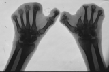 destruction of most phalanges: concentric diaphyseal remodelling  right first and second metatarsal