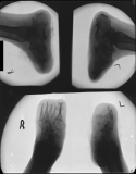clubbing of both feet: destruction of all phalanges: fusion of tarsals: concentric diaphyseal remodelling of metatarsals