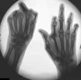 destruction of most distal phalanges: concentric diaphyseal remodelling of intermediate and proximal phalanges: concentric diaphyseal remodelling 2nd right metacarpal: joint subluxation left thumb