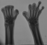 destruction of most phalanges except left proximal phalanges of rays 4&5