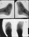 destruction of all phalanges: advanced concentric diaphyseal remodelling of all metatarsals: fusion and diffuse atrophy of tarsals