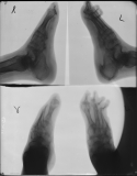 destruction of ray 5 of both feet: destroction of most phalanges: concentric diaphyseal remodelling of metatarsals: contraction and elevation of toes on left: fusion and diffuse atrophy of tarsals