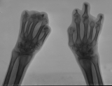 destruction of most phalanges: concentric diaphyseal remodelling of the six remaining