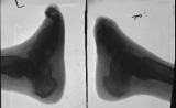 left foot - contraction and elevation of remaining toes: right foot - destruction of phalanges and distal of metatarsals: fusion of tarsals