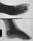 destruction of most phalanges: concentric diaphyseal remodelling and fusion of distal metatarsals