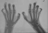 claw hands with destruction of most distal phalanges: fusion and subluxation of most interphalangeal joints
