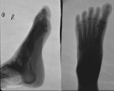 thickening of plantar aponeurosis: diffuse atrophy distal phalanges