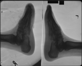 collapse of longitudinal arch of both: loss of toes on right foot
