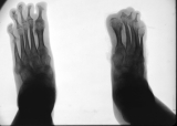 loss of most phalanges: concentric diaphyseal remodelling of metatarsals with destruction of metatarso-phalangeal joints