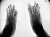 loss of distal phalanges and right hallux: left hallux almost destroyed: destruction and concentric diaphyseal remodelling of proximal phalanges: 