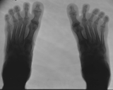 early contraction deformation of toes