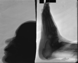 collapse of longitudinal arch: bony plaque on sole of calcaneus: loss of anterior nasal spine