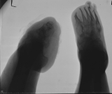 destruction of all phalanges:  left foot - destruction of all metatarsals: right foot - concentric diaphyseal remodelling of all metatarsals: fusion and atrophy of all tarsals of both feet