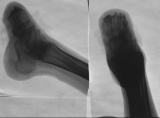 destruction of all phalanges and metatarsals: compression and fusion of tarsals