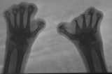 loss of all phalanges: concentric diaphyseal remodelling metatarsals: 