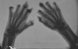 destruction of most intermediate and distal phalanges: claw hands with fusion and subluxation of 5 inter-phalangeal joints