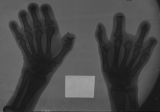 loss of most intermediate and distal phalanges: complete loss of finger 3 of right hand: