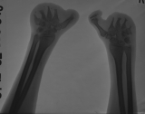 Phalanges destroyed: Metacarpals severe concentric diaphyseal remodelling with truncation: Carpals: 