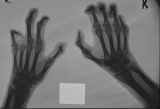 claw hands: loss of left 4th finger: concentric diaphyseal remodelling, joint subluxation and fusion of remaining phalanges