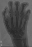Phalanges: Most distal and intermediate destroyed: concentric diaphyseal remodelling of proximal phalanges.