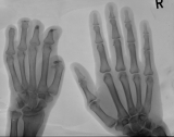 left only: Destruction of intermediate and distal phalanges: concentric diaphyseal remodelling of 2 proximal phalanges.