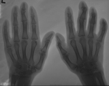 Early claw hands: interphalangeal joint destruction and ankylosis of three distal phalanges
