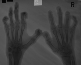Claw hands: destruction of distal and intermediate phalanges: