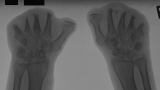Destruction of phalanges: Advanced concentric diaphyseal remodelling and shortening of most metacarpals.