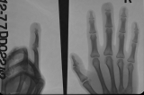 Claw hand Left: destruction of distal phalanges: joint subluxation: volar grooving.