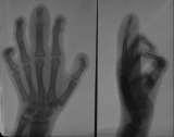 Claw hand right: joint subluxation: distal phalanges loss or damage.