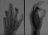 Claw hand: destruction of some intermediate and distal phalanges: joint subluxation