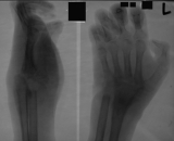 Claw hand: destruction of carpals, proximal of metacarpals and distal ends radius and ulna: Severe longitudinal shortening  of hand