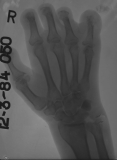 Claw hand right: Destruction of intermediate and distal phalanges: