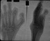 Loss of distal and intermediate phalanges: destruction and collapse of carpals, proximal ends of metacarpals: Severe longitudinal shortening  of hand
