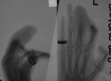 Clawed hand: destruction of intermediate and distal phalanges of middle finger, with joint subluxation