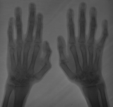 Some ankylosis of phalangeal joints: Joint subluxation and ankylosis of both thumbs