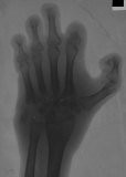 Compression and destruction of carpals, proximal ends of metacarpals, distal and intermediate phalanges
