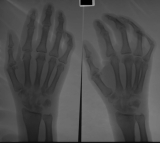 Early claw hand deformity: possible early destruction of carpals and proximal metacarpals