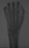 claw hand:small 4th metacarpal