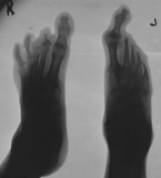 Pencilling of left metatarsals 2-5 with destruction of attached phalanges, joint subluxation of Hallux:  right foot - destruction or shortening of phalanges on rays 2-5.
