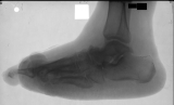 collapse of longitudinal ligament: boat shaped foot: Most phalanges lost