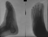contraction deformation of foot and destruction of most intermediate and distal phalanges